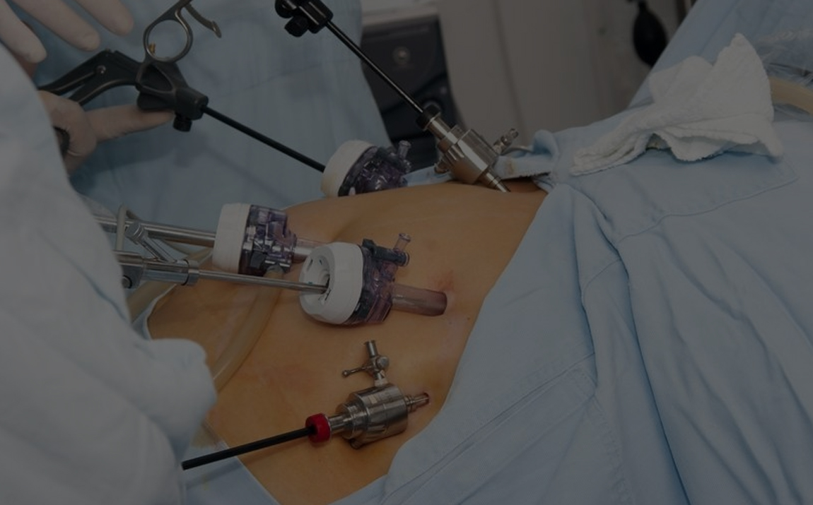 bariatric-surgery-for-weight-loss.jpg